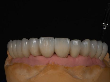 Implant (33).jpg