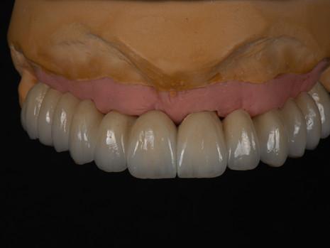 Implant (36).jpg