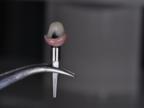 Implant (14).JPG