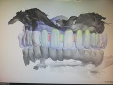 3D Tarama (3).jpeg