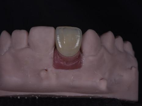 Implant (27).JPG