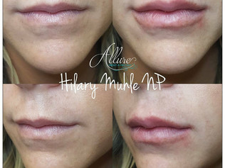 Before & After Juvederm Lip Filler