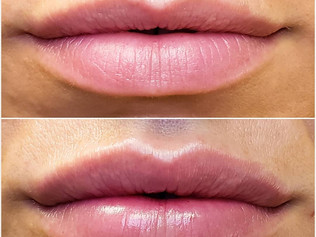 Volbella Lips Before & After