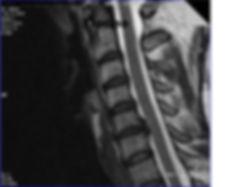 Грыжы межпозвонкового диска после  лечения