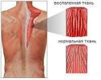 миозит, триггер, тригерный, боль в мышце