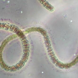 Cyanobacteria Monitoring Collaborative Training