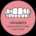 crossbite_orthoalign treatable cases.png