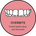 overbite_orthoalign treatable cases.png