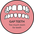 gap teeth_orthoalign treatable cases.png