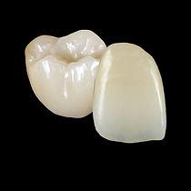 All Ceramic Full Anatomical Zirconia Restorations