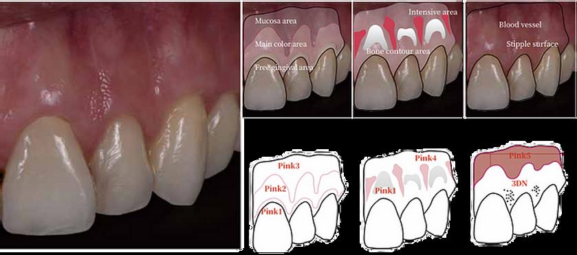 Gum Structure