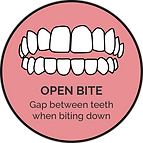 open bite_orthoalign treatable cases.png