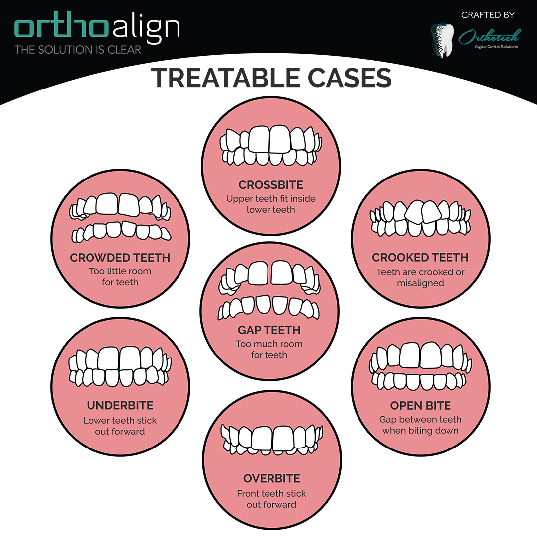 OrthoAlign Treatable Cases