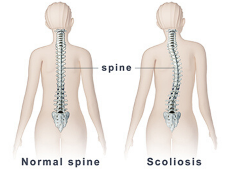 Why Pilates is the Perfect Exercise for Scoliosis