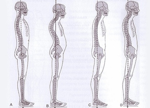 Improve your Posture in 5 mins