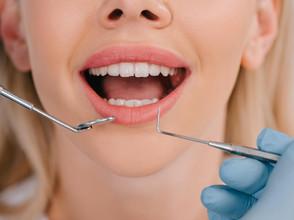 Seguro de saúde que engloba cuidados de saúde dentária