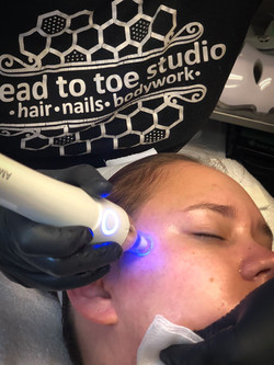 Microneedling by Mary