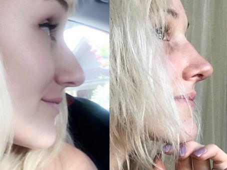 Rhinoplasty-Before & After