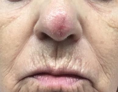Resección de punta nasal con reconstrucción por Carcinoma Epidermoide