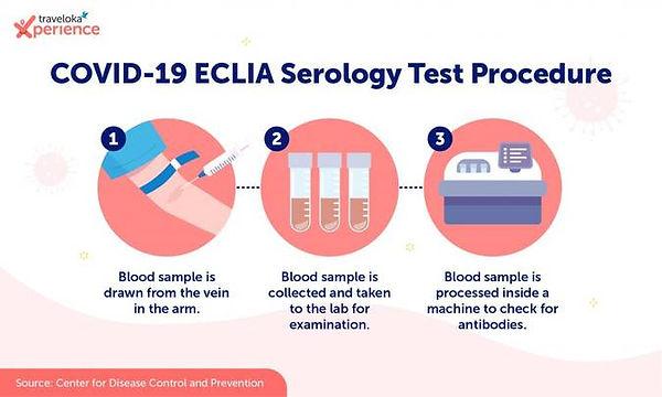 Infographic_ECLIA-Serology_EN-1024x615.j