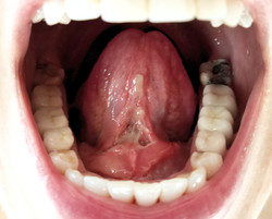 tongue two days post frenectomy