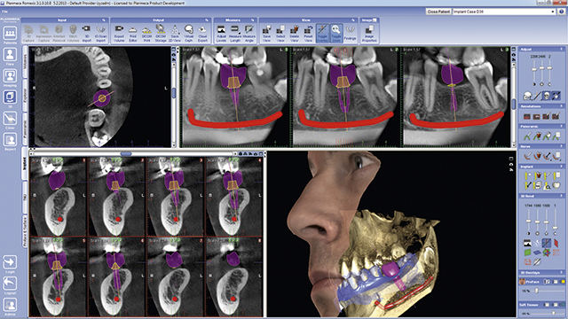 tac-zaragoza-implante-dental-dentist