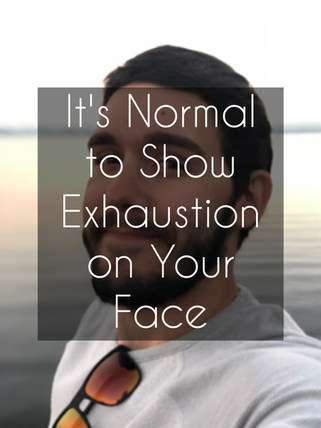 It's Normal to Show Exhaustion on Your Face