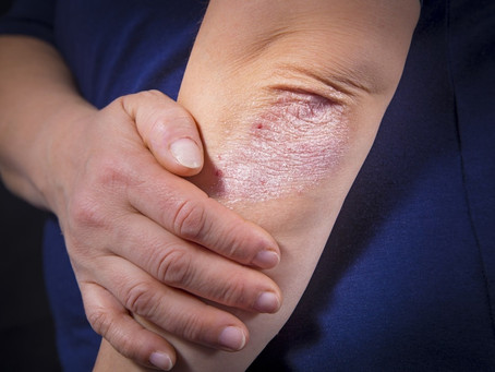 Complications of psoriasis and treatment with herbs and oils