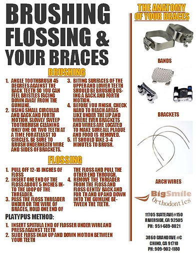How to Brush and Floss with Braces