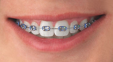 High quality traditional metal braces offered at BigSmile Orthodontics