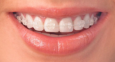 Ceramic clear braces offered at BigSmile Orthodontics