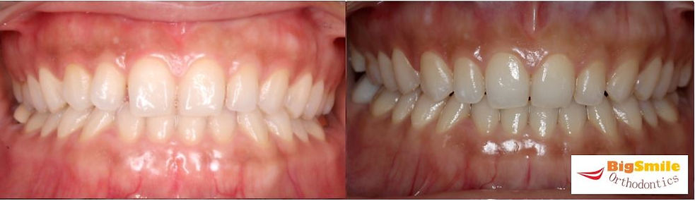 Crooked Tooth Treated with INBRACE
