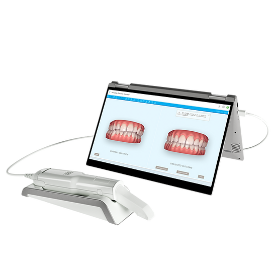 Digitally Designed Smile with Invisalign