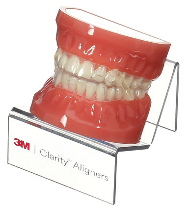 Tooth Model with Clear Aligners, Attachments, and Rubber Bands