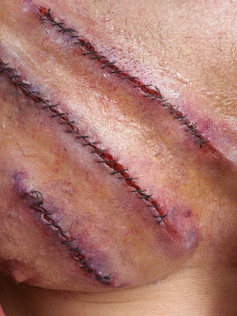 Sewn Wounds
