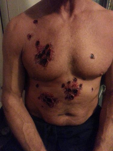 Shotgun Wounds