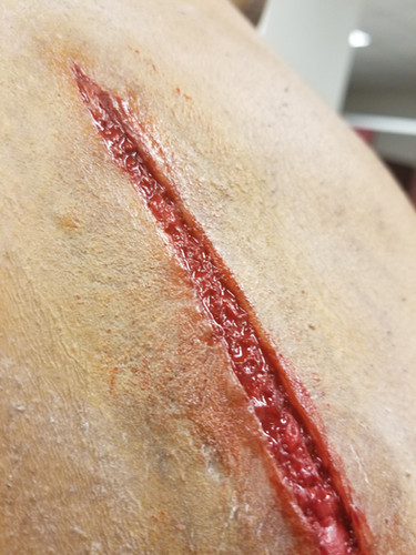 Prosthetic transfer wounds made and applied for Oak Cliff Bible Fellowship.