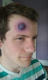 Bulging Head Wound