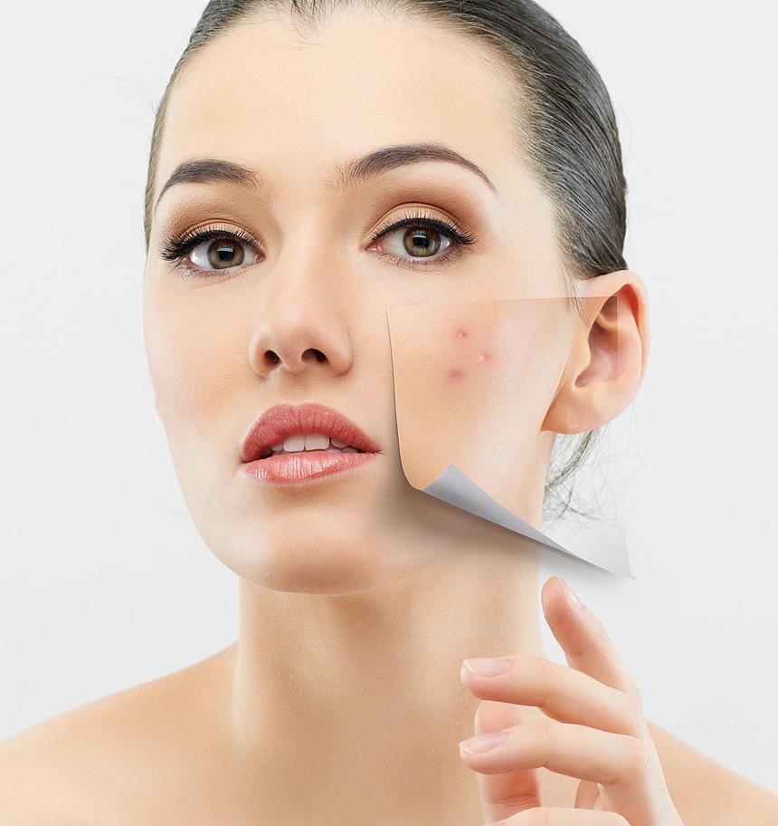 Anti Acne Formula