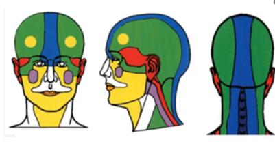 Maux de tête, céphalées, migraines comment s'y retrouver ?