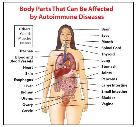 What Is An Autoimmune Disorder Home Jenasis Medical Group