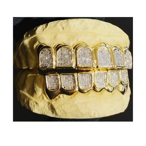 22Kt. Iced Out Full Set Grillz with SI Diamond