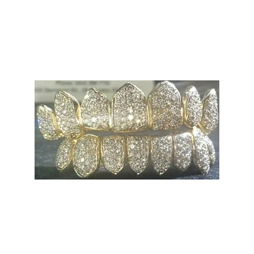 10Kt. Iced Out Full Set Grillz with SI Diamonds