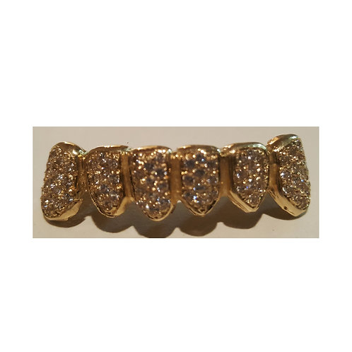 18Kt. Iced Out Half Set Grillz with VS Diamond