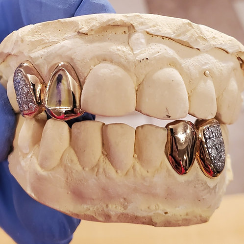 22Kt. Iced Out Half Set Grillz with SI Diamond