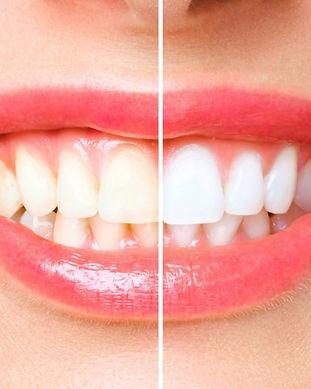 teeth-whitening-in-mckenzie-towne-1024x7