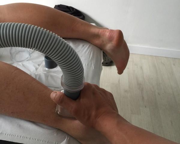 Fisioterapia con Physium a Sant Cugat para el tobillo