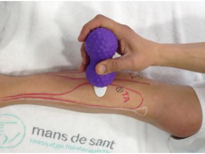 Lesiones en el corredor: la periostitis tibial