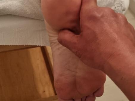 Tractament d'un esperó calcani amb fisioteràpia