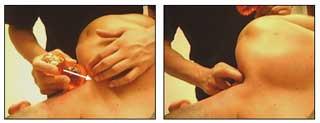 Fisioterapia a Mans de Sant